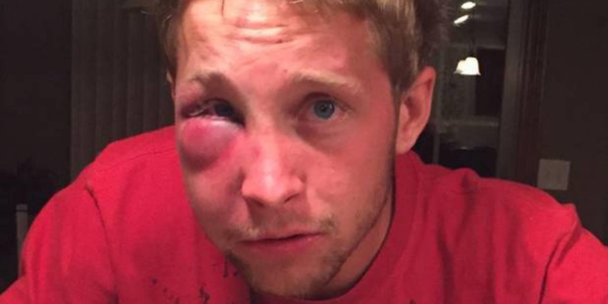 Jovem autista sofre bullying e pune seus agressores de forma inusitada