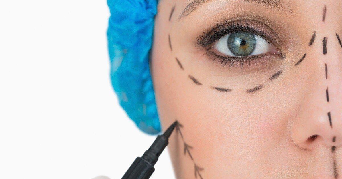 Cirurgia plástica estética: obrigação de meios ou de resultado?
