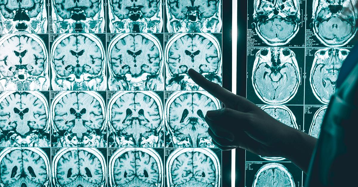 O neurodeterminismo como causa supralegal de exclusão da culpabilidade