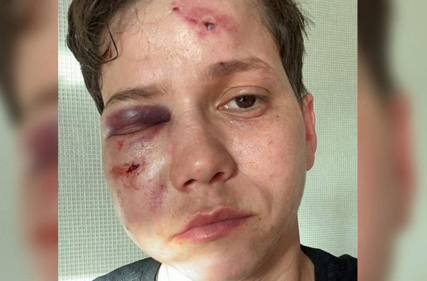 Youtuber Karol Eller é espancada no Rio e tem rosto desfigurado